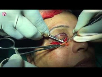 Eyelid Surgery in India, Blepharoplasty Cost, Procedure & Method - Live Surgery
