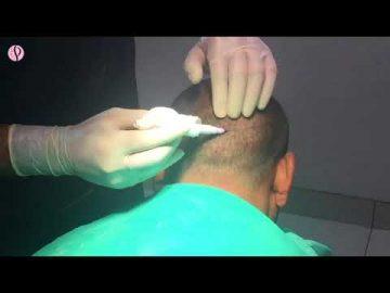 Successful FUT Hair Transplant of 2000 Patients at Profile Studios by Dr. Vikas Gupta