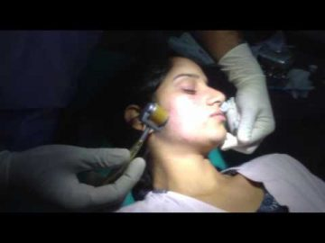 Best Surgery to Remove Face Scars in India