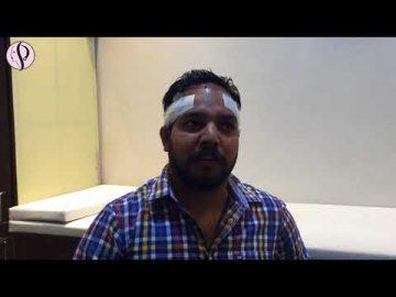 Patient from Ferozepur got Successful Hair Transplant Surgery - Feedback