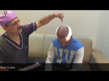 Live FUE Hair Transplant Surgery at Profile Hair Centre India done by Dr Vikas Gupta