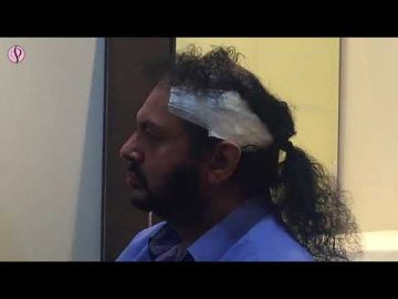 FUE Hair Transplant in India, FUE Cost, Procedure - Live Feedback of our Patient