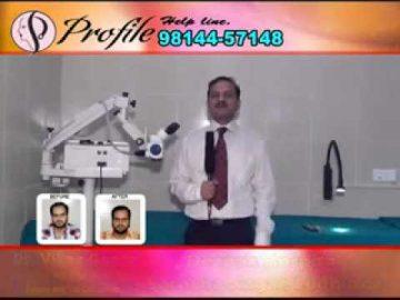 Hair transplant in punjab