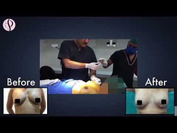 Live Breast Reduction Surgery Procedure By Dr. Vikas Gupta