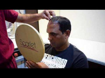 Complete Hair Transplant Surgery Procedure by Dr. Vikas Gupta – Profile Studios